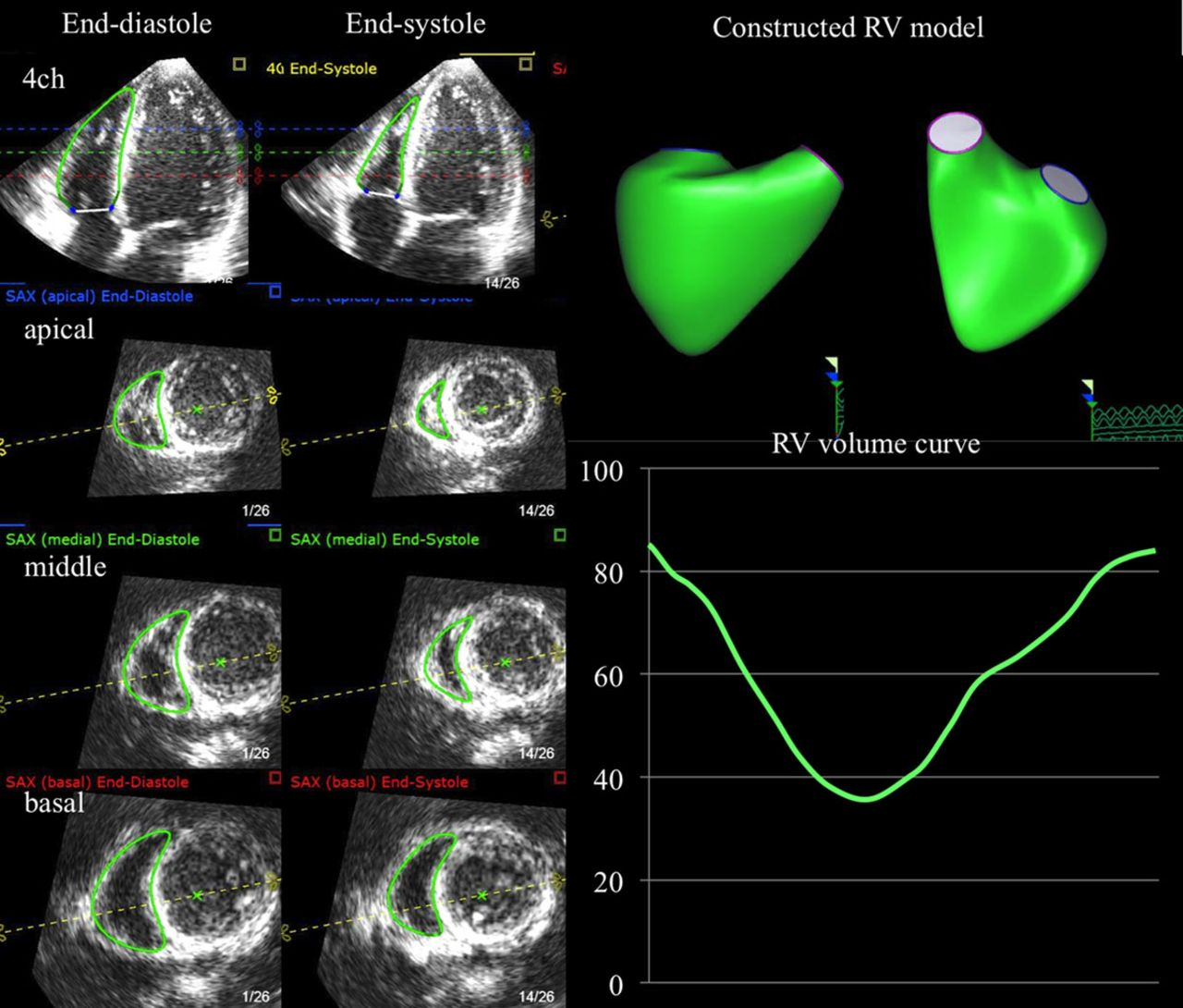 Prognostic Value of Right Ventricular Ejection Fraction Assessed ...