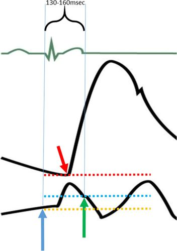 What We Talk About When We Talk About the Wedge Pressure   Circulation:  Heart FailureAHA Journals