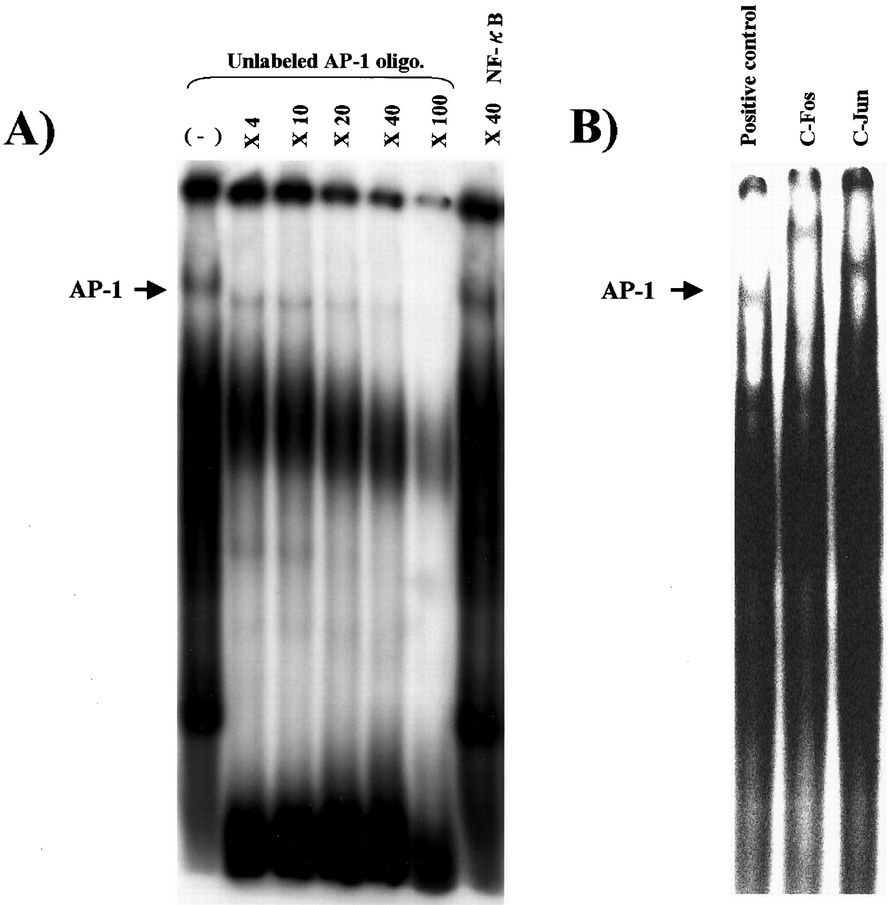 Administration Of A Decoy Against The Activator Protein-1