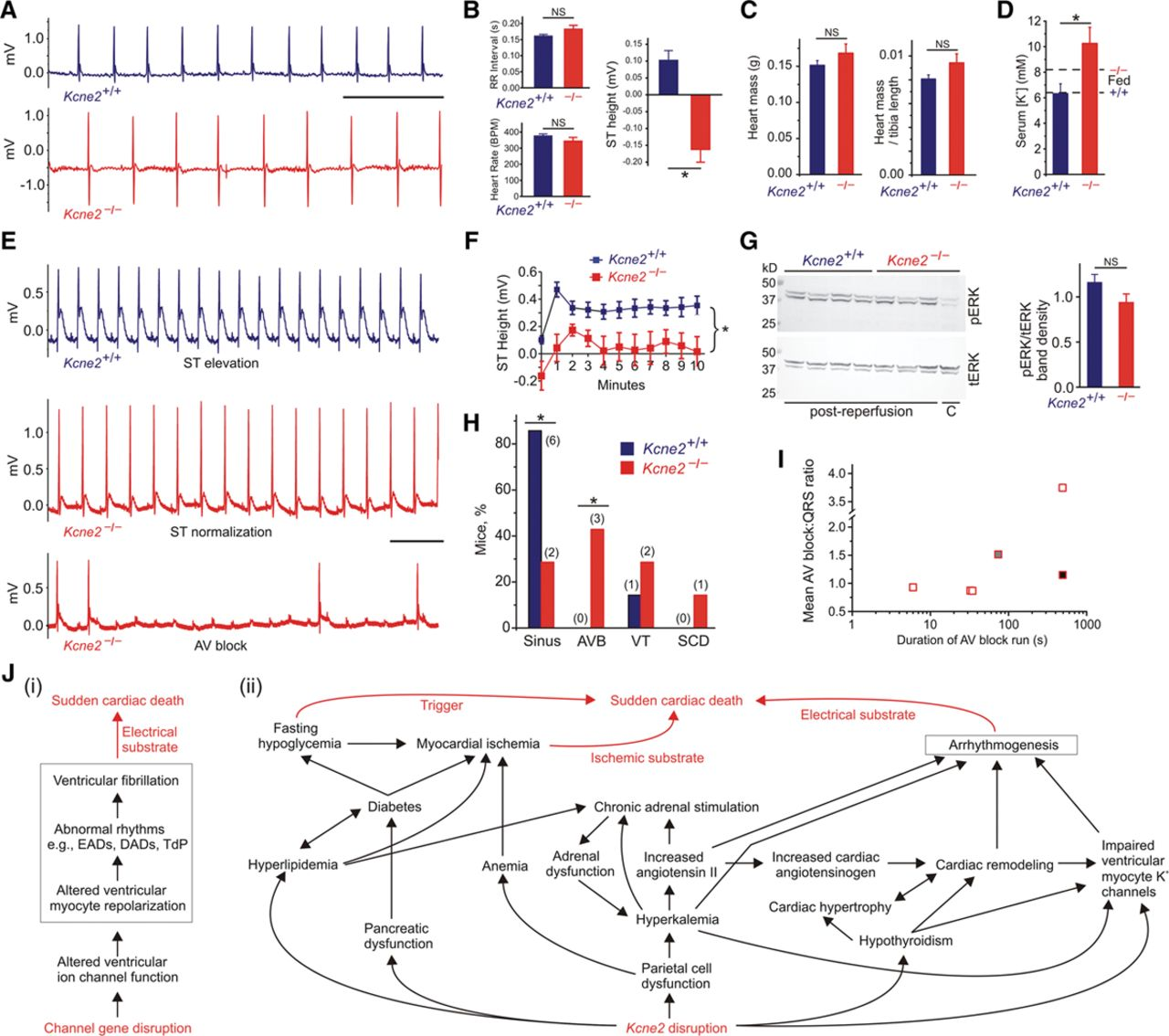 3D Scale Monteforte kcne2 deletion creates a multisystem syndrome predisposing
