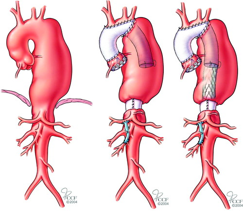 2010 ACCF/AHA/AATS/ACR/ASA/SCA/SCAI/SIR/STS/SVM Guidelines for the  Diagnosis and Management of Patients With Thoracic Aortic Disease    Circulation