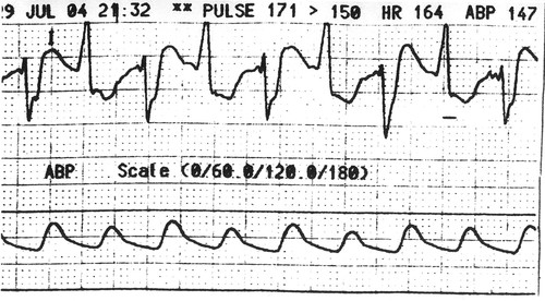 Bidirectional Ventricular Tachycardia Caused By Digitalis Toxicity Circulation