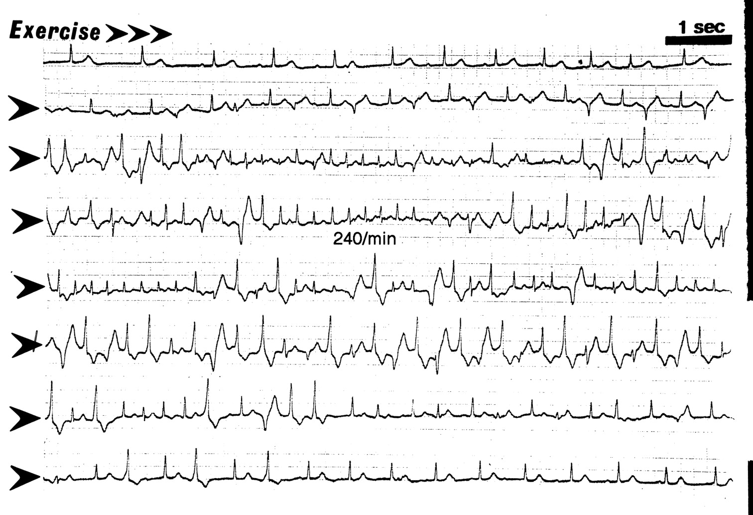 Catecholaminergic Polymorphic Ventricular Tachycardia In Children Circulation