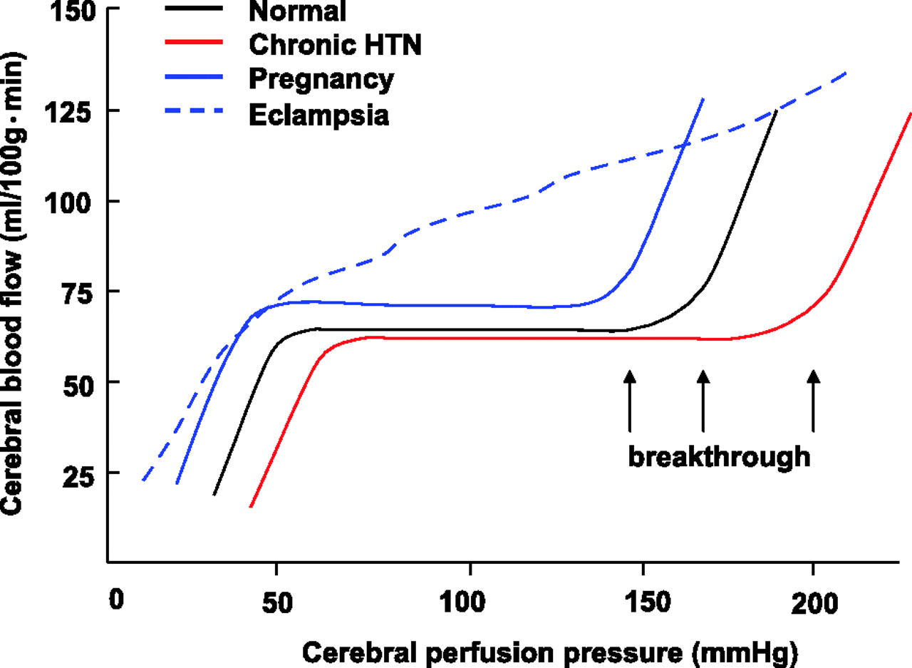 Cerebrovascular Function in Pregnancy and Eclampsia   Hypertension