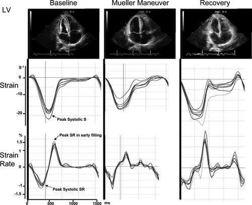 Changes in Left and Right Ventricular Mechanics During the Mueller Maneuver  in Healthy Adults | Circulation: Cardiovascular Imaging