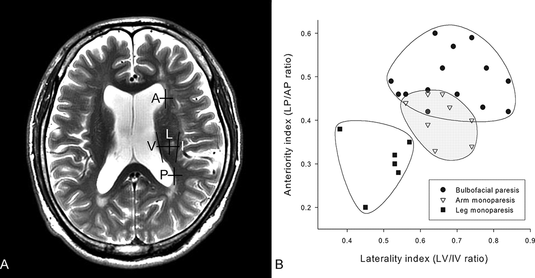 Somatotopic Organization Of Motor Fibers In The Corona Radiata In Monoparetic Patients With Small Subcortical Infarct Stroke