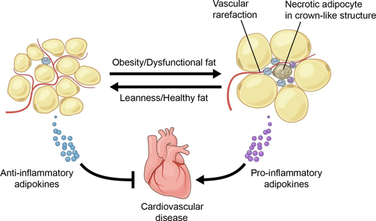 Obesity Induced Changes In Adipose Tissue Microenvironment And Their Impact On Cardiovascular Disease Circulation Research
