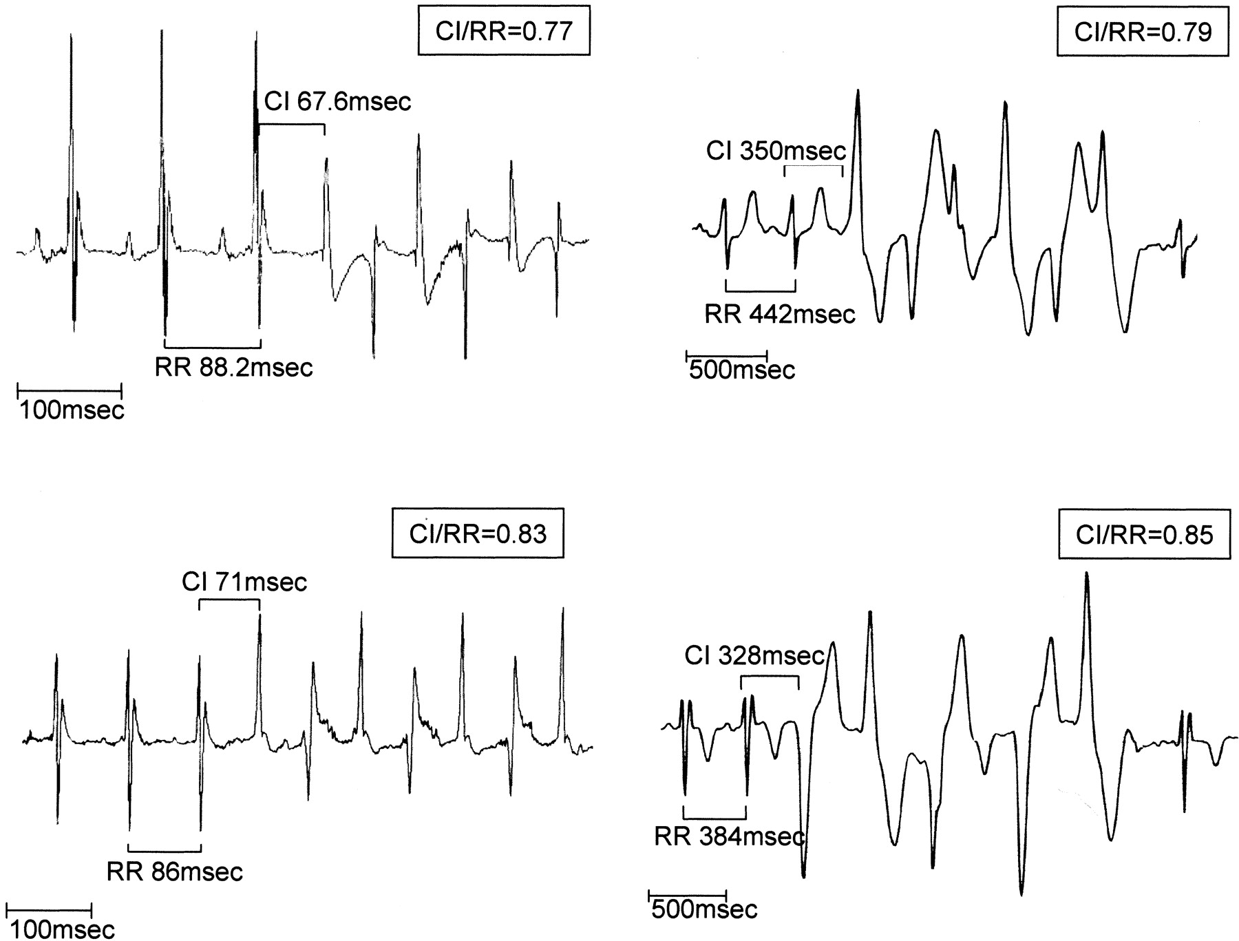 Bidirectional Ventricular Tachycardia And Fibrillation Elicited In A Knock In Mouse Model Carrier Of A Mutation In The Cardiac Ryanodine Receptor Circulation Research