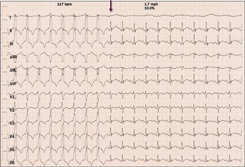 2015 ACC/AHA/HRS Guideline for the Management of Adult Patients With  Supraventricular Tachycardia | Circulation