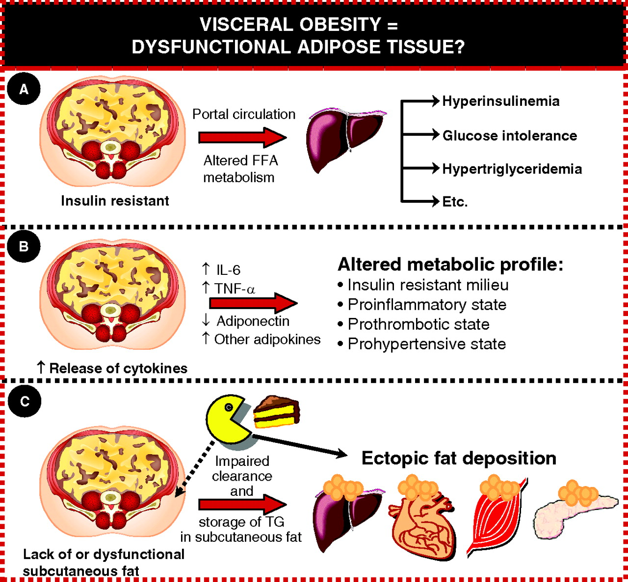 Abdominal Obesity And The Metabolic Syndrome Contribution To Global Cardiometabolic Risk Arteriosclerosis Thrombosis And Vascular Biology