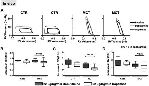 GRK2-Mediated Inhibition of Adrenergic and Dopaminergic
