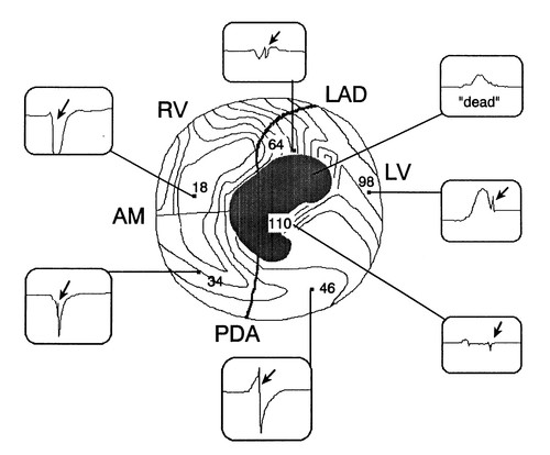 Three Distinct Patterns Of Ventricular Activation In Infarcted Human