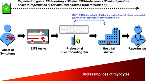 Implementation and Integration of Prehospital ECGs Into Systems of