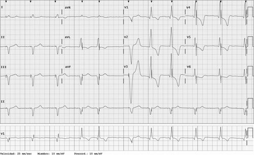 Is This Pacemaker Functioning Abnormally Circulation