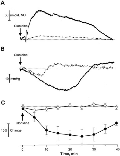 Central Hypotensive Action of Clonidine Requires Nitric Oxide