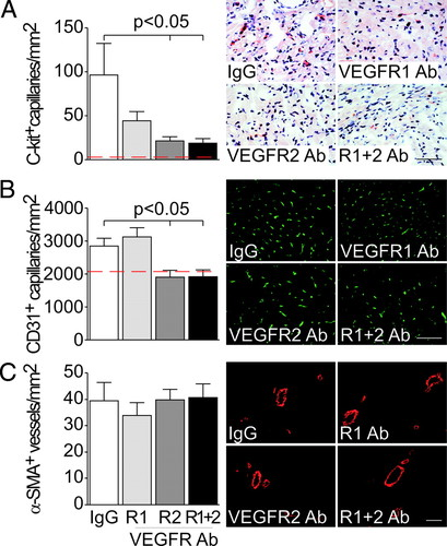 VEGFR-1 and -2 Regulate Inflammation, Myocardial Angiogenesis, and