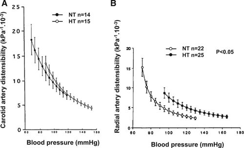 The Structural Factor Of Hypertension Circulation Research