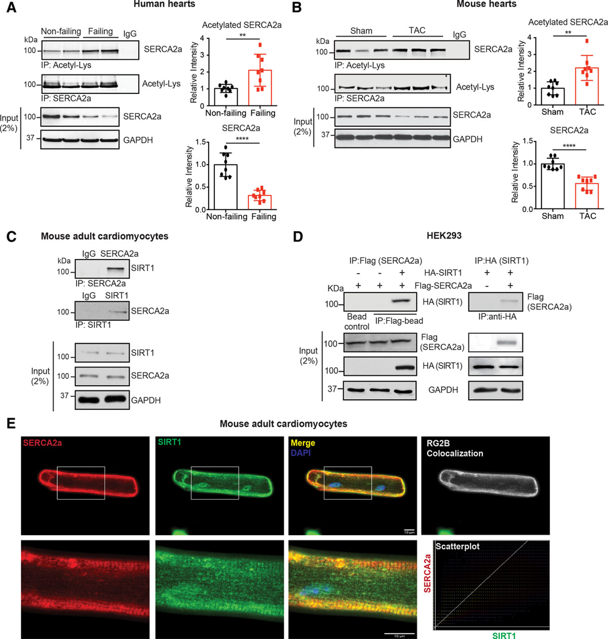 Role of SIRT1 in Modulating Acetylation of the Sarco
