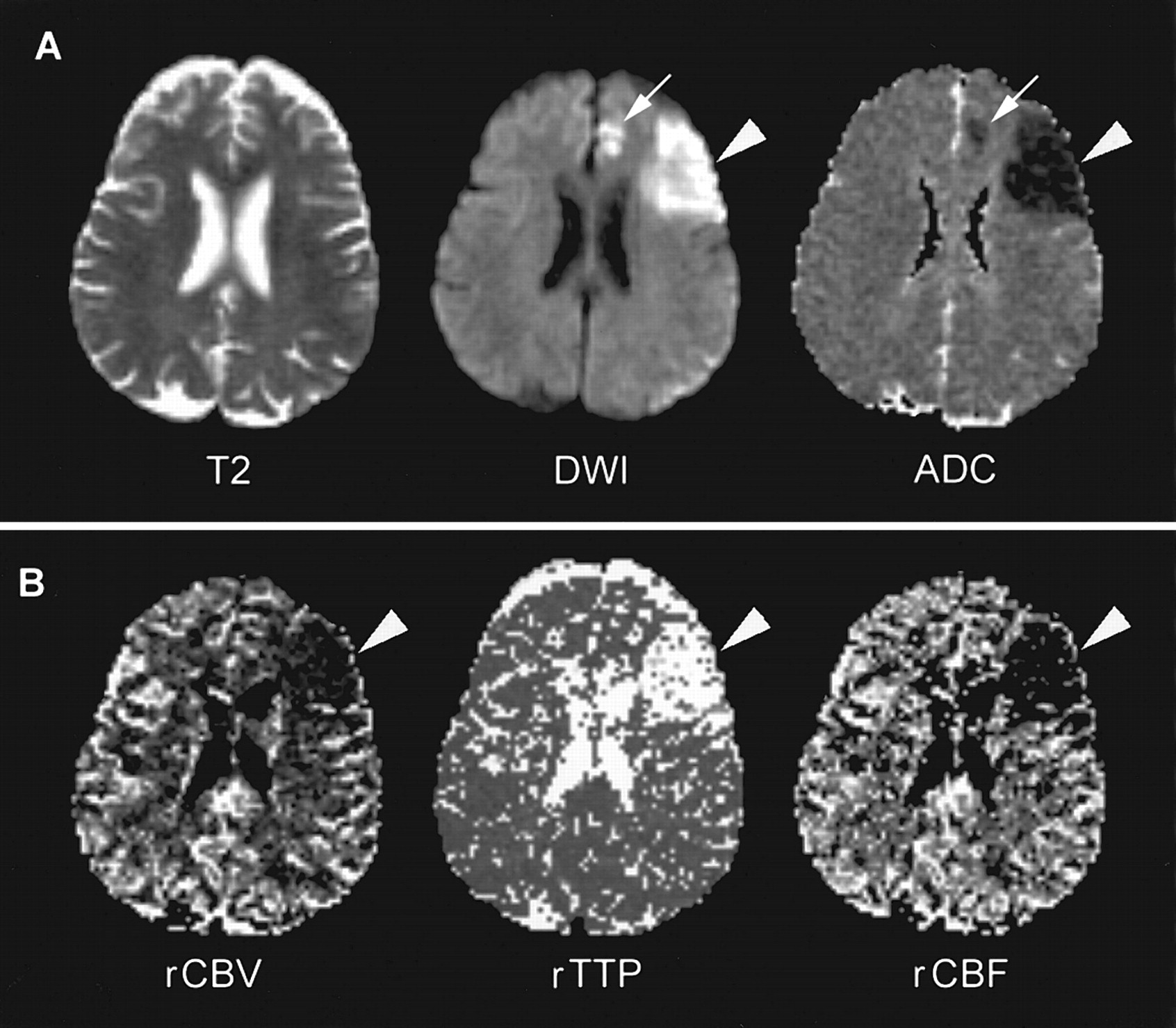 Intra-Arterial rtPA Treatment of Stroke Assessed by