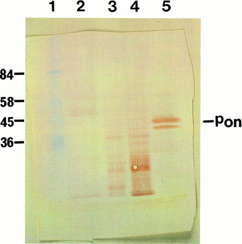Increased Immunolocalization of Paraoxonase, Clusterin, and