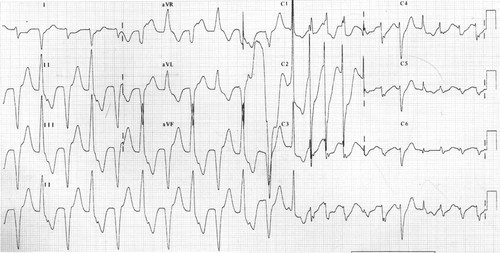 Fatal Bidirectional And Polymorphic Ventricular Tachycardia With