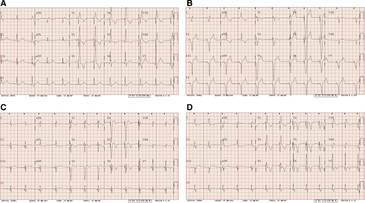 Cardiac Resynchronization Therapy for Pediatric Patients