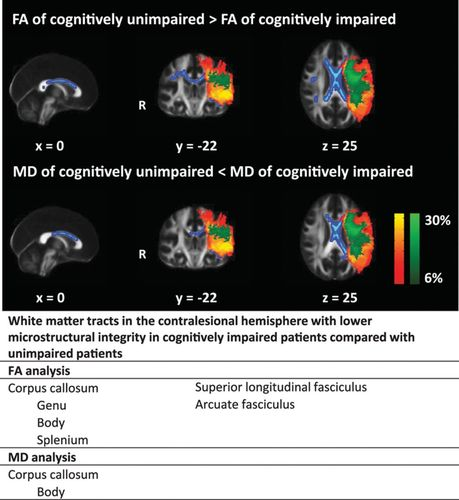 Remote Lower White Matter Integrity Increases the Risk of