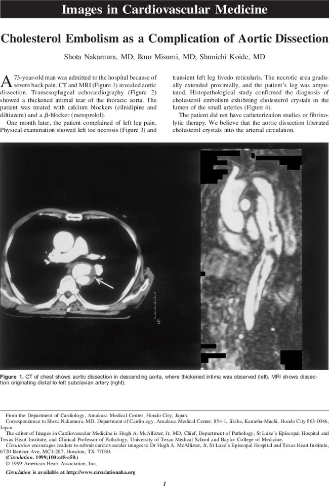 Cholesterol Embolism as a Complication of Aortic Dissection
