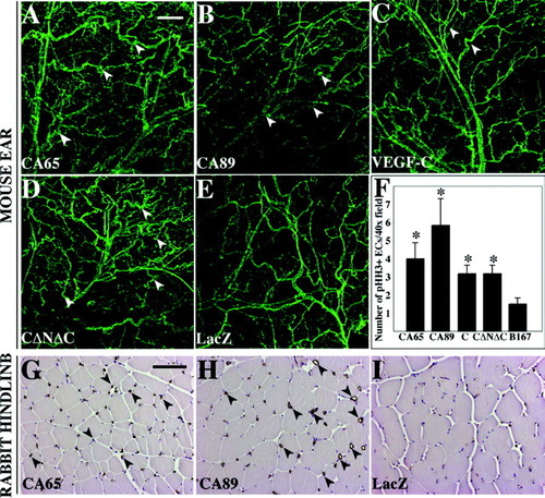 Distinct Architecture of Lymphatic Vessels Induced by