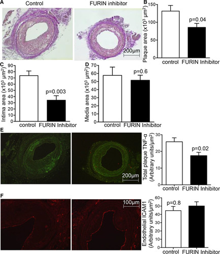 FURIN Inhibition Reduces Vascular Remodeling and