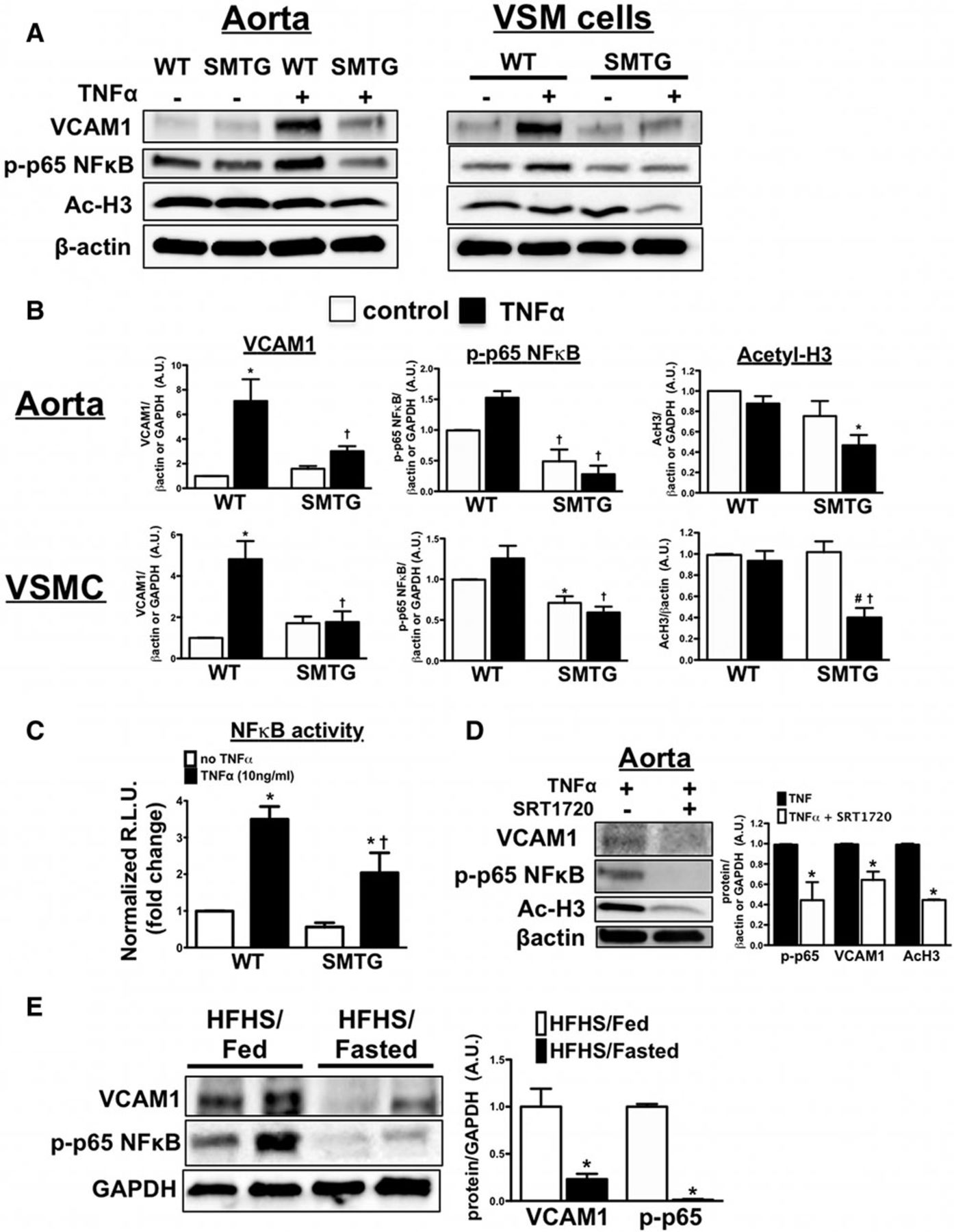 Vascular Smooth Muscle Sirtuin-1 Protects Against Diet-Induced