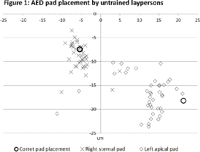 conclusions untrained laypeople place aed pads poorly the left apical pad is often misplaced medially aed voice prompts and pad design should be further