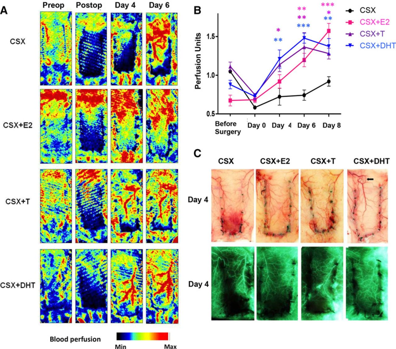 Testosterone Prevents Cutaneous Ischemia and Necrosis in