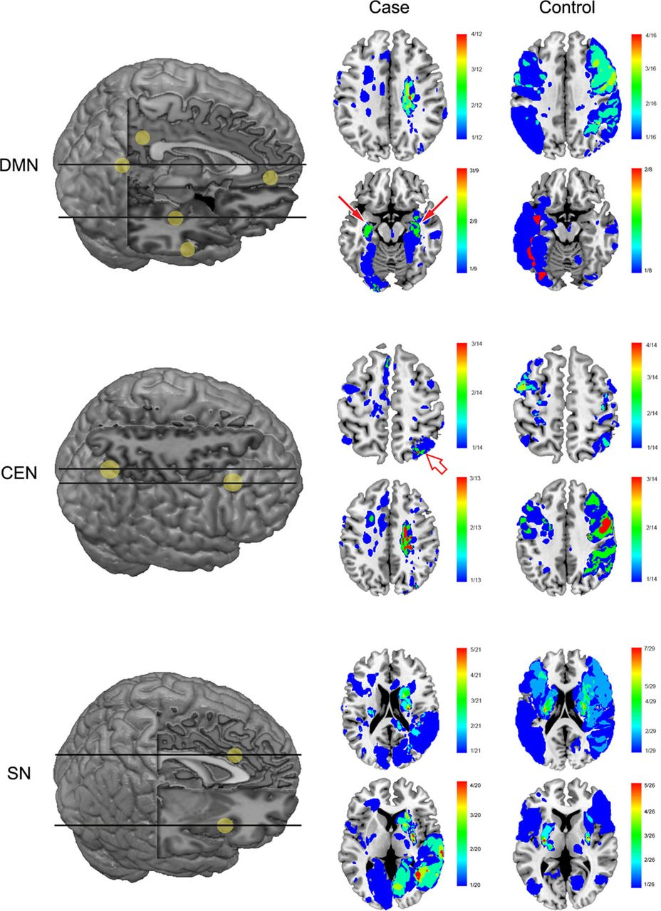 Cortical Hubs And Subcortical Cholinergic Pathways As Neural