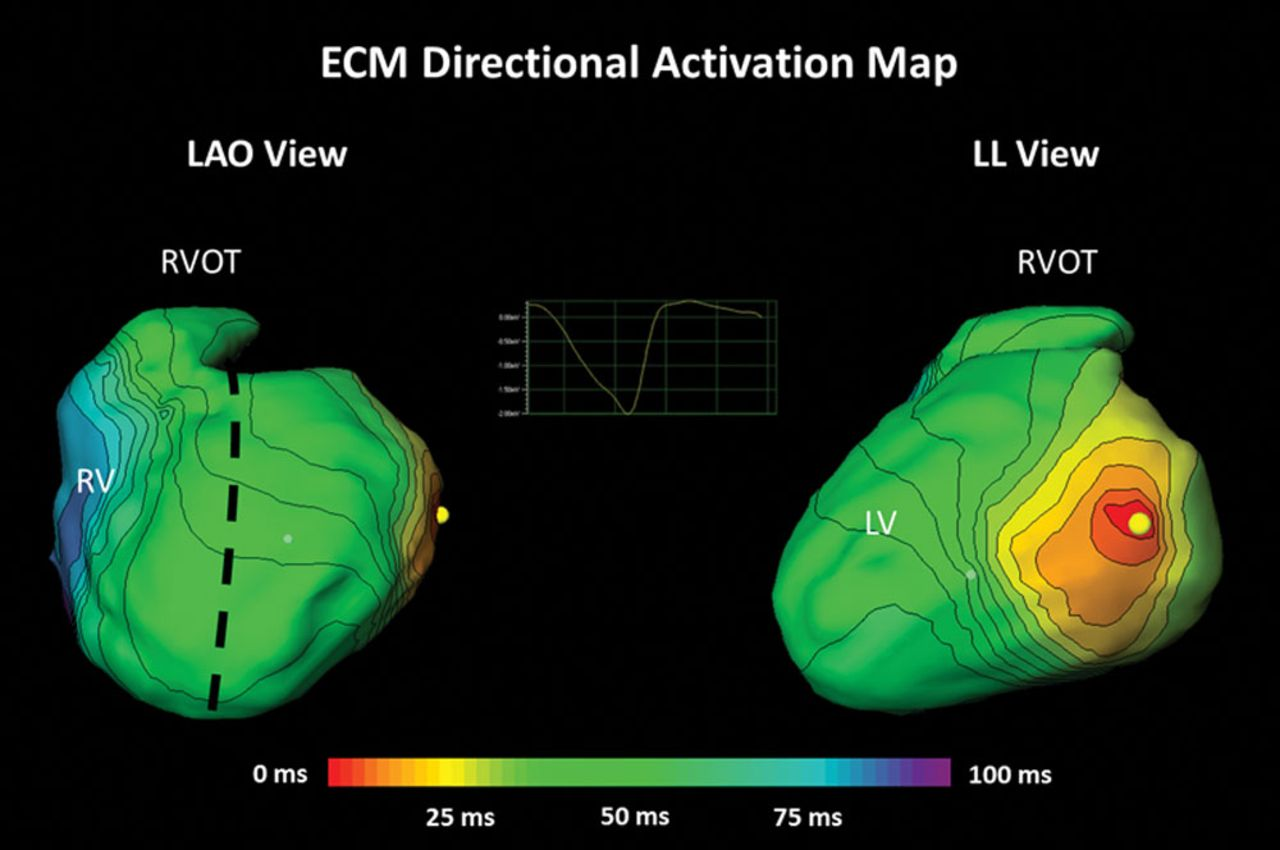 activation mapping electrophysiology