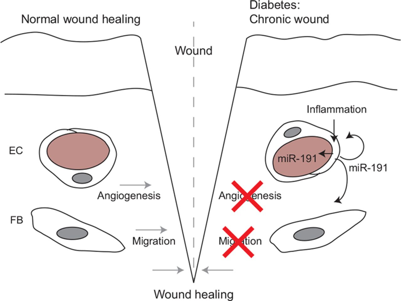 Circulating MicroRNAs Link Inflammation to Impaired Wound Healing in