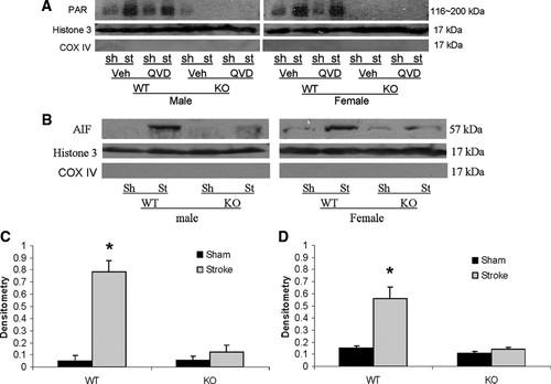 Sex Differences in the Response to Poly(ADP-ribose) Polymerase-1