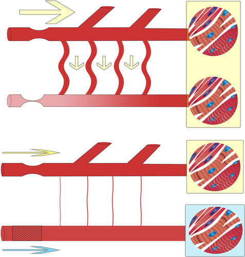Applicability and Interpretation of Coronary Physiology in