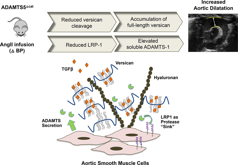 Role Of Adamts 5 In Aortic Dilatation And Extracellular Matrix