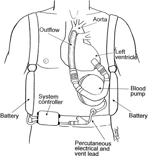 Mechanical Circulatory Support And Cardiac Transplantation