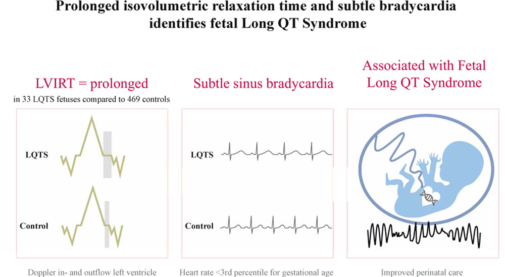 Left Ventricular Isovolumetric Relaxation Time Is Prolonged