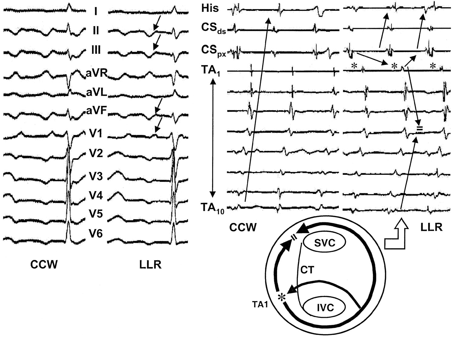 Surface Electrocardiographic Characteristics of Right and