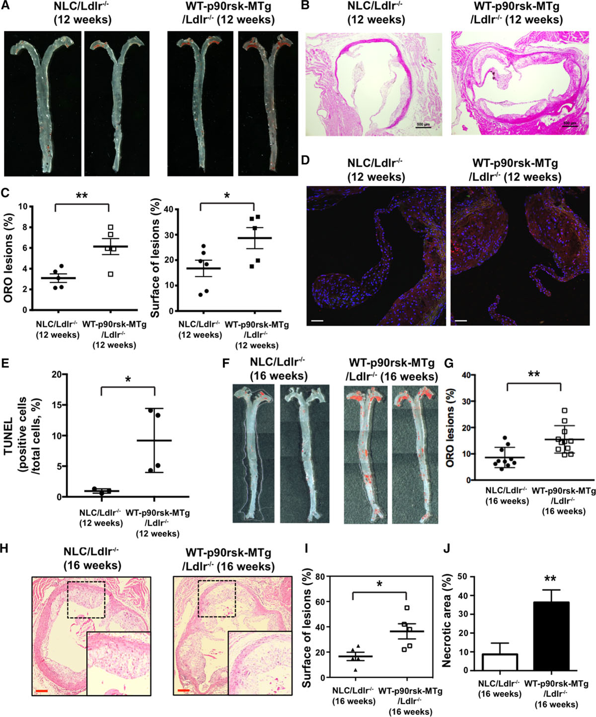 Senescent Phenotype Induced by p90RSK-NRF2 Signaling Sensitizes