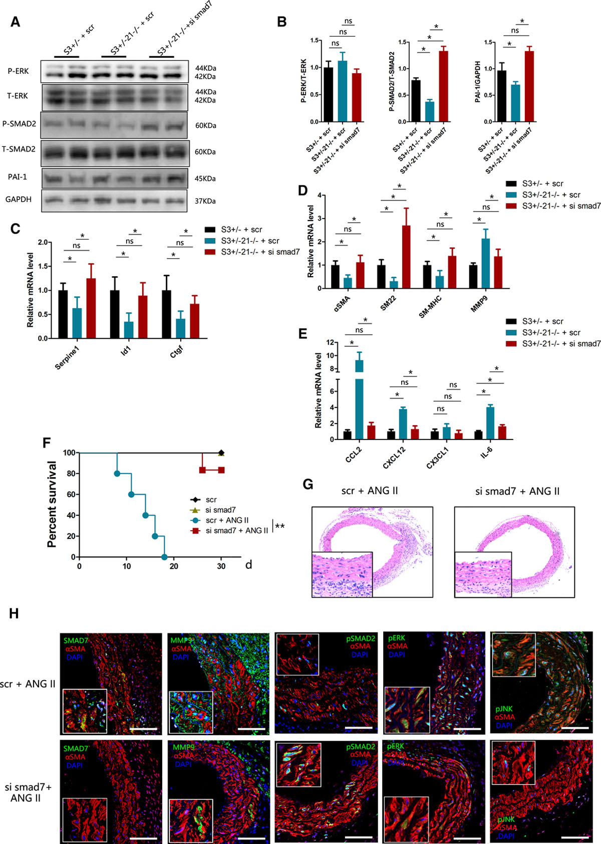 MicroRNA-21 Knockout Exacerbates Angiotensin II–Induced Thoracic