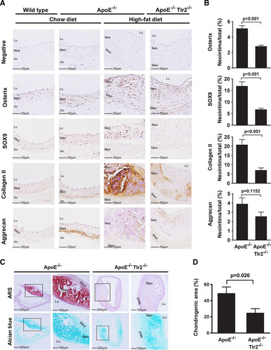 TLR2 Promotes Vascular Smooth Muscle Cell Chondrogenic