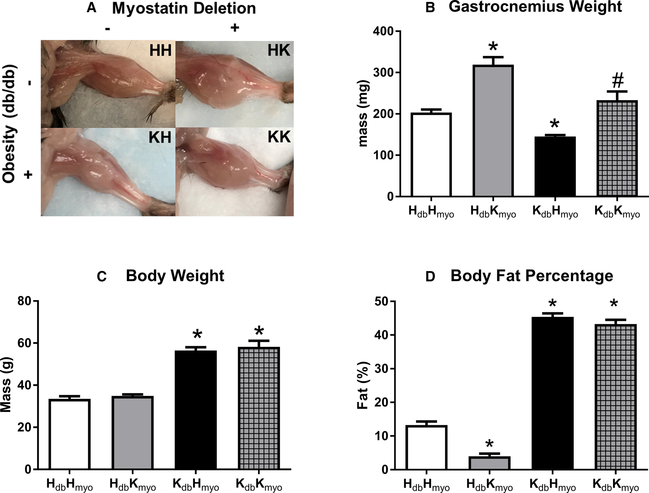 Increased Muscle Mass Protects Against Hypertension and