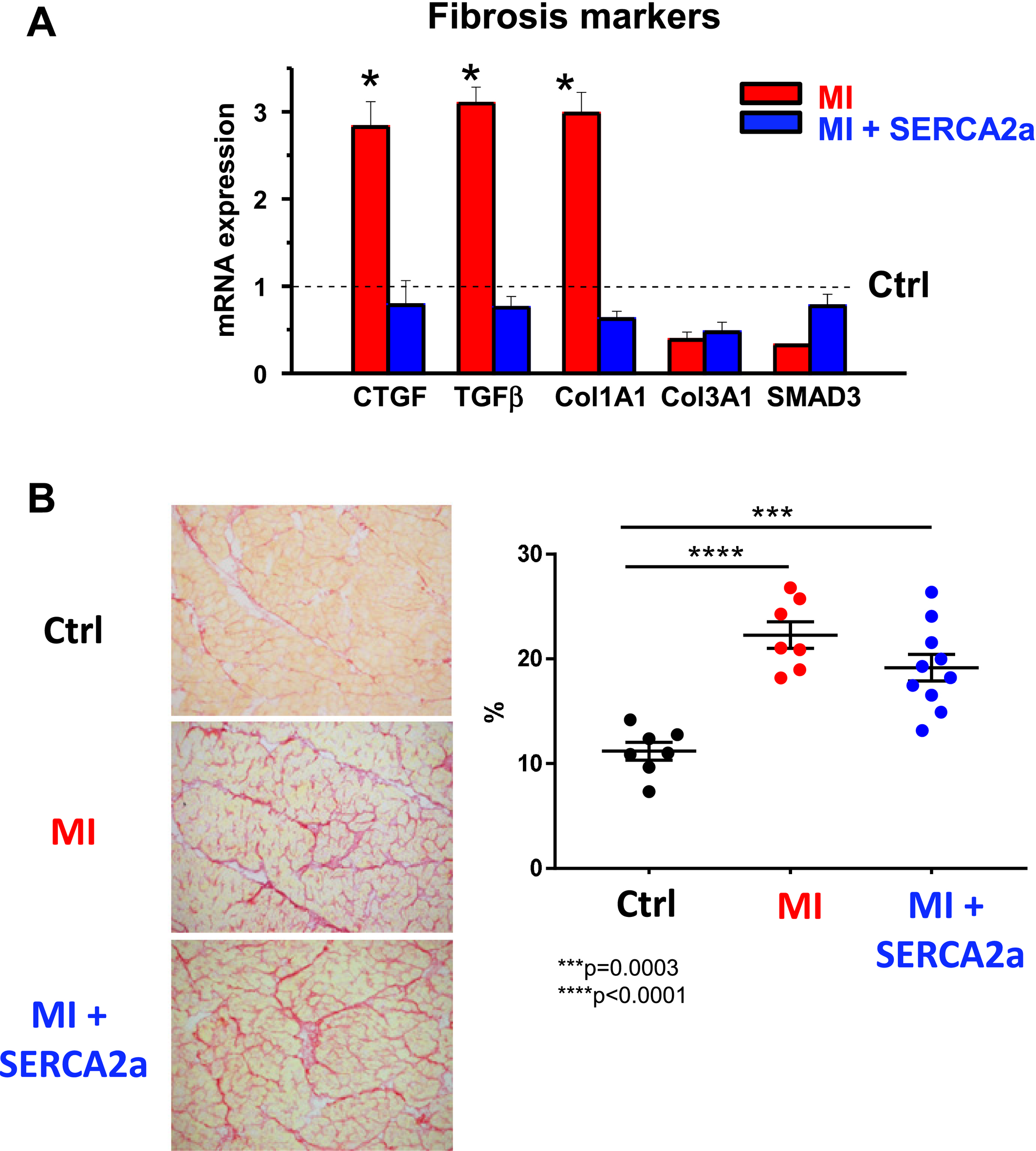 Primary Effect of SERCA2a Gene Transfer on Conduction