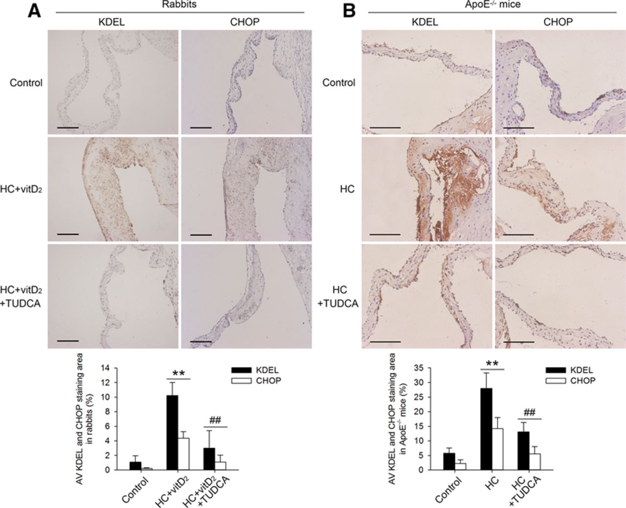 Endoplasmic Reticulum Stress Participates in Aortic Valve