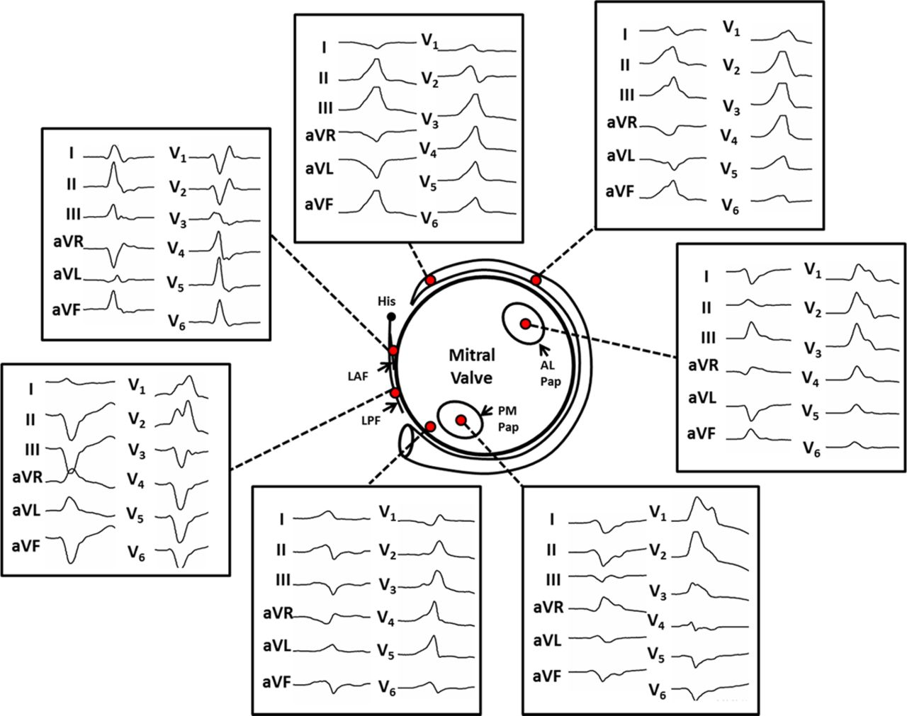 differentiation of papillary muscle from fascicular and mitral annular ventricular arrhythmias