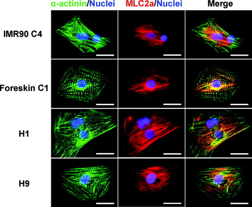 Functional Cardiomyocytes Derived From Human Induced